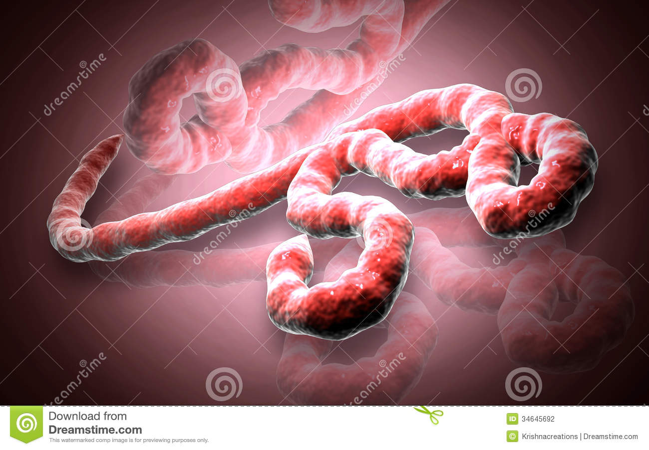 the ebola virus Ebola virus the hemorrhagic fever caused by the ebola virus see the full definition since 1828 menu join mwu gain access to thousands of additional definitions.