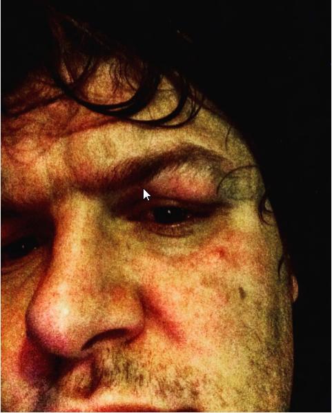 efectos de un codo en mi ojo...ha perdido por poco mi ojo jajajajaja